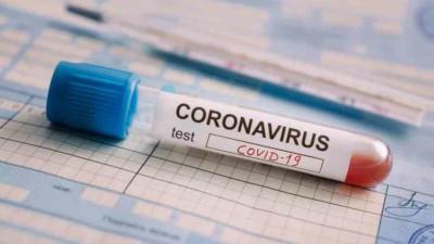 En Argentina suman 524 los muertos por Coronavirus