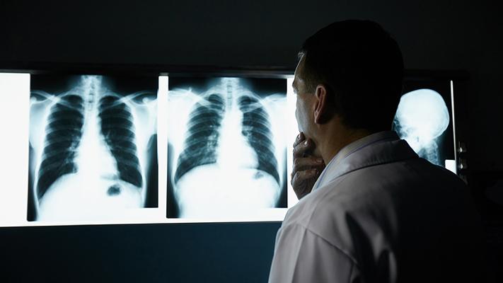 ¿Podrá una app con IA leer e informar una radiografía?